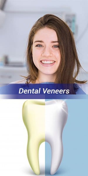 dental_veneers.jpg