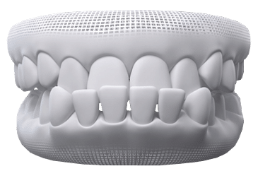 Invisalign Clear Aligners - Apex Medical